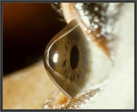 Keratoconus (right) showing anterior protrusion of the cornea.
